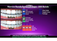 500 Narrow Bands *100 Extra Strength Narrow Closing Bands, 100 Extra Strength Small Narrow Closing Bands and 300 Narrow Retaining Bands