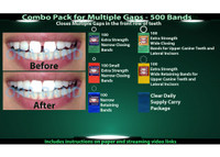 Combo Pack for Multiple Gaps - 500 BANDS *100 Extra Strength Narrow Closing Bands, 100 Extra Strength Small Narrow Closing Bands, 100 Narrow Retaining Bands, 100 Extra Strength Wide Closing Bands, 100 Wide Retaining Bands