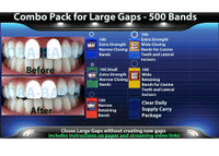 Combo Pack for Large Gaps - 500 BANDS *100 Extra Strength Narrow Closing Bands, 100 Extra Strength Small Narrow Closing Bands, 100 Narrow Retaining Bands, 100 Extra Strength Wide Closing Bands, 100 Wide Retaining Bands