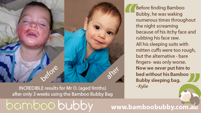 bambbo-bubby-photo-testimonial-before-after-mr-o-9mths-bbb-copy.jpg