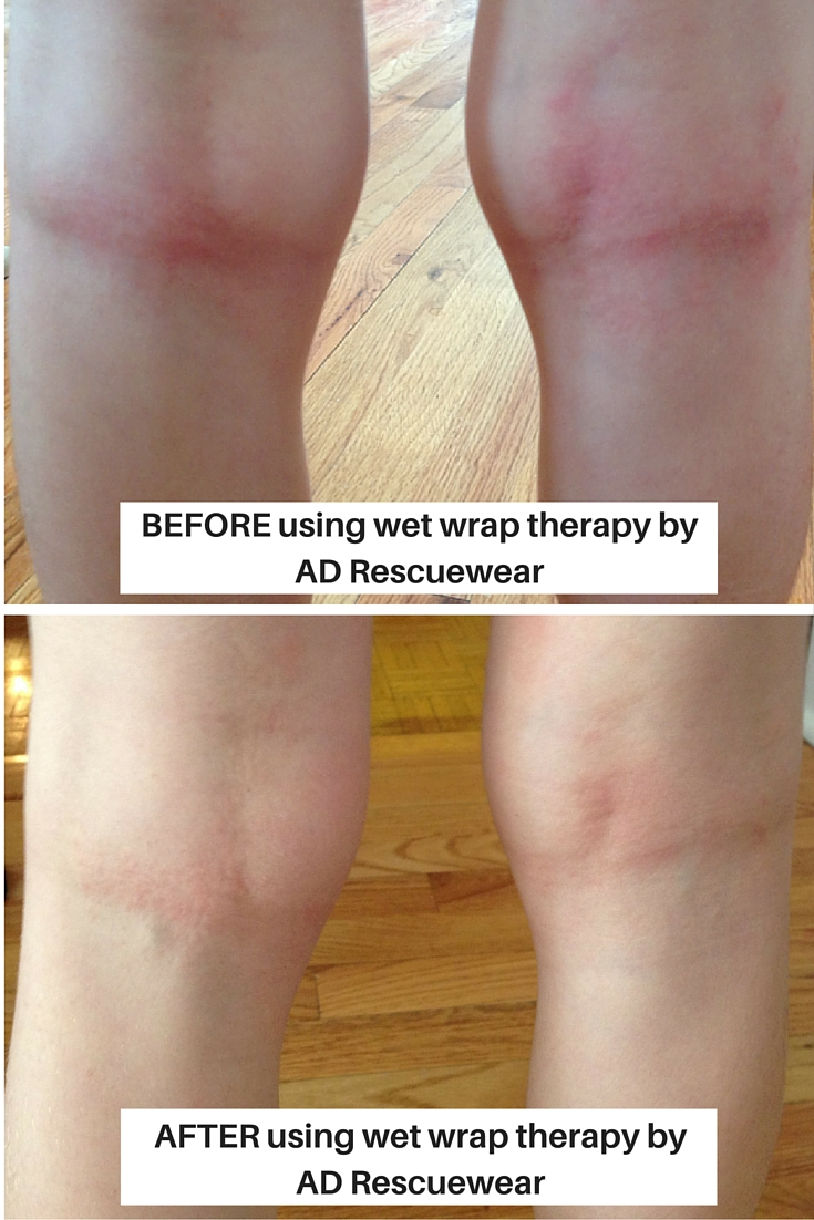 before-after-using-wet-wrap-therapy-by-ad-rescuewear.jpg