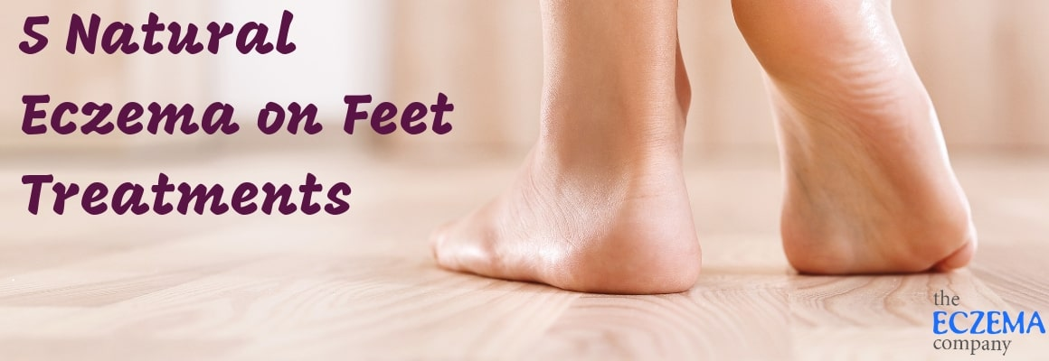 Do You Suffer From Eczema On Toes Feet Or Eczema On Ankles And Cant Find Relief From Both Scratching And Irritation Foot Eczema Can Be Difficult To Treat