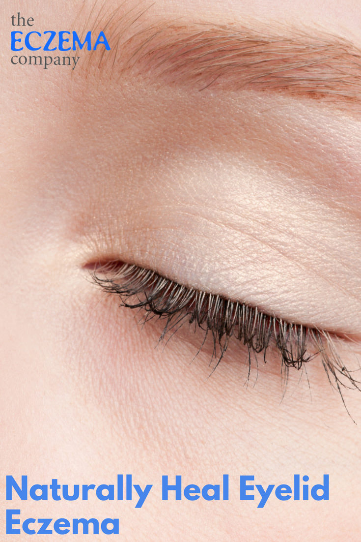 10a5a8112fb If you suffer from eyelid eczema, we hope you find relief with our tips!