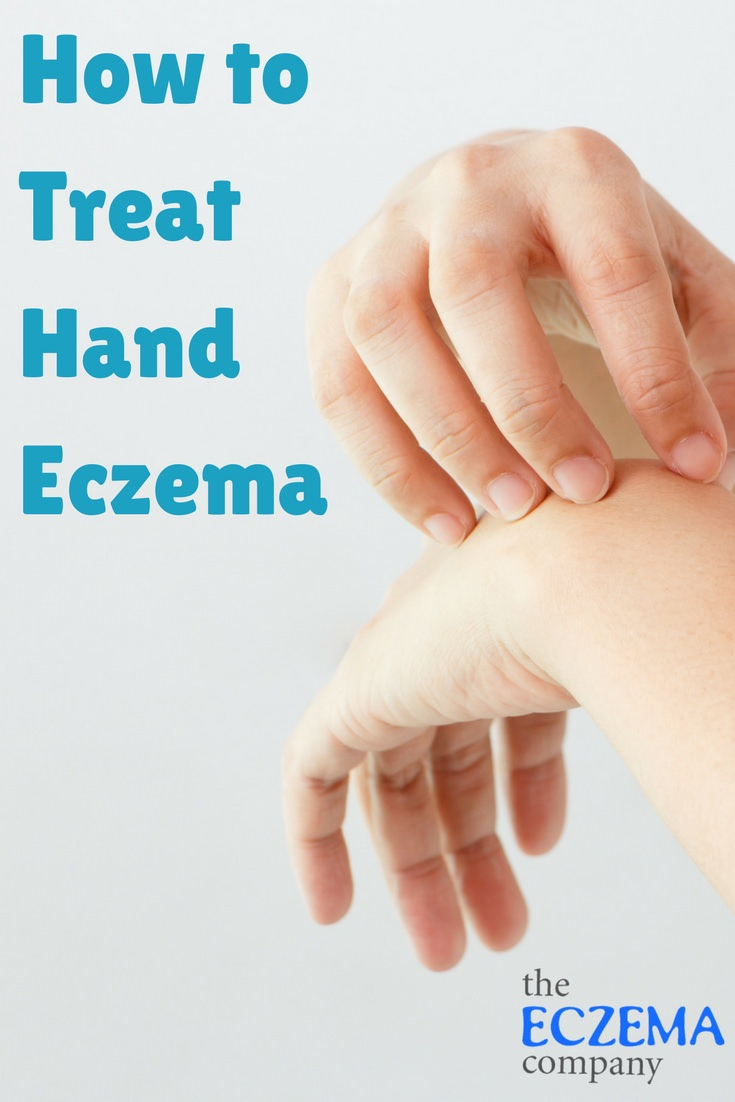 Natural treatment for eczema on hands