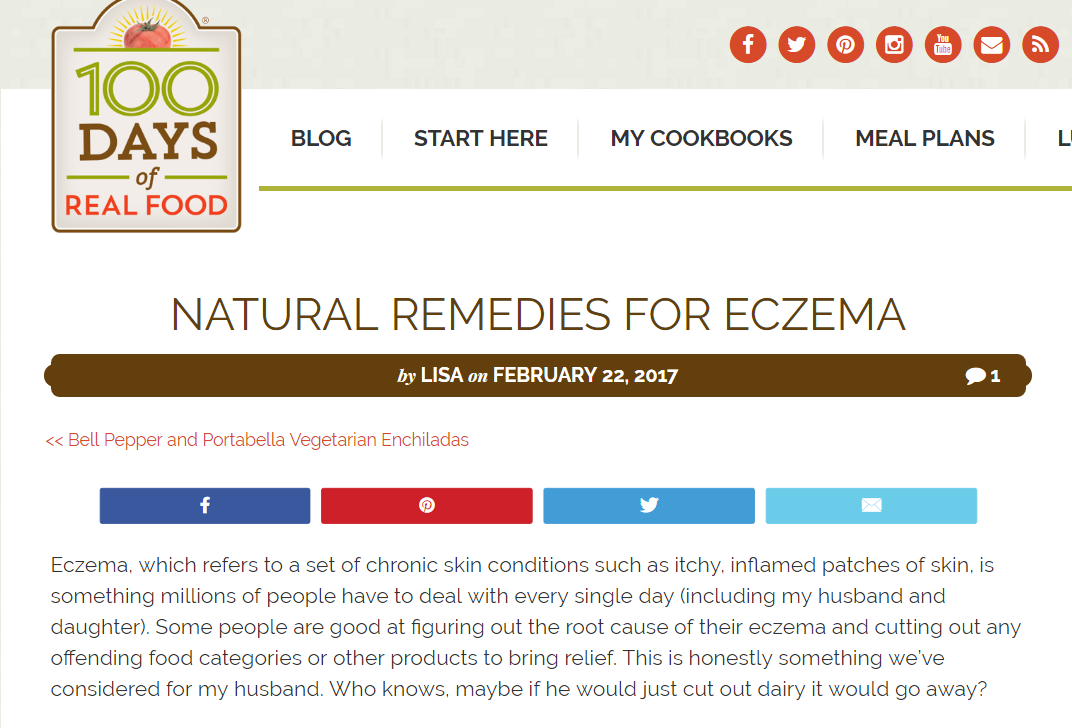natural-remedies-for-eczema-100-days-of-real-food.png