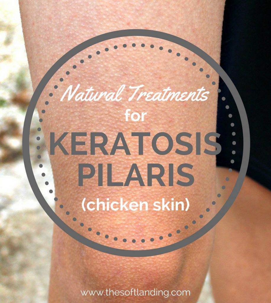 natural-treatments-for-keratosis-pilaris.jpg