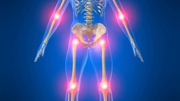 rheumaticpain.jpg