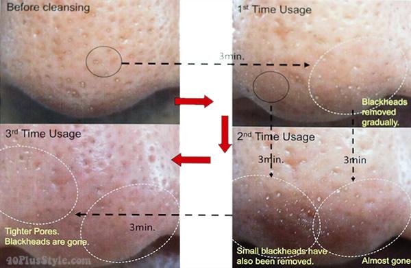 Làm sạch mụn đầu đen bằng Hitachi Ion Cleanser