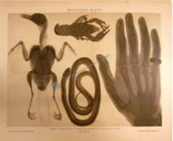 Medical Disease X-ray Röntgen Rays Antique print. German Physicist Wilhelm Conrad Röntgen became the father of diagnostic Radiology in 1896. Diagnostic Tool for identifying disease & internal injury.