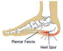plantar fasciitis or Heel spurs