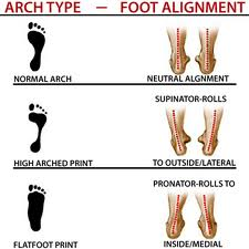 d6db2fccbe33 A person with flat foot or fallen arches has a solid footprint which has  only one curve inside the foot where arch is located.