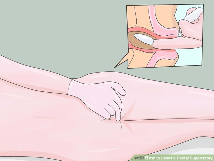 how-to-use-adult-suppositories-rectal.jpg