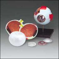 Eye ( Whopper) Anatomical Model