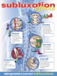 Subluxation Effects Poster