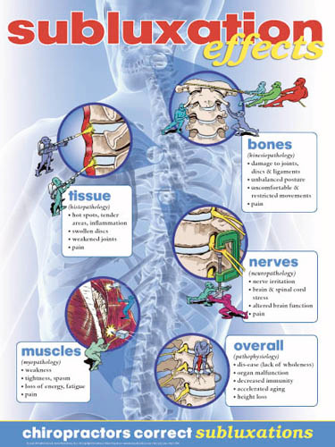 Subluxation Effects Poster Clinical Charts And Supplies