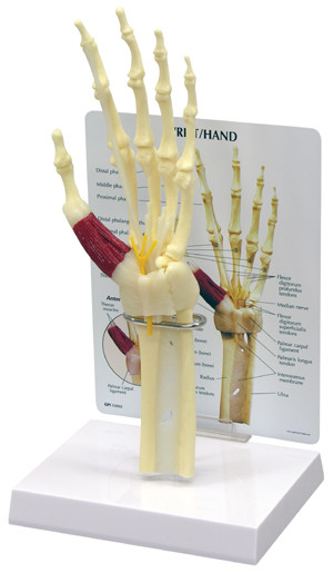 Carpal Tunnel Syndrome Hand and Wrist - Anatomical Model