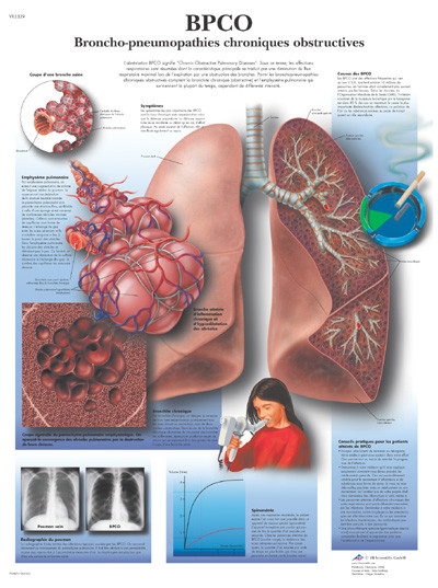 BPCO Broncho-Pneumopathies Chroniques Obstructives