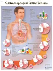 Gastroesophageal reflux disease Poster