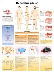 Decubitus Ulcers Chart