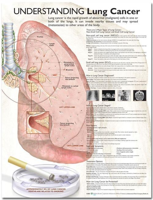 Understanding Lung Cancer Anatomical Chart