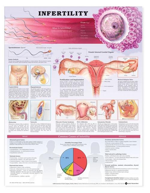 Infertility Anatomical Chart - 2nd Edition