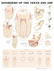 Teeth and Jaw Disorders Anatomical Dental Chart