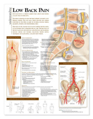 Low Back Pain Chart