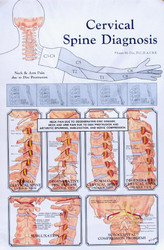 Cervical Spine Diagnosis Anatomy Poster