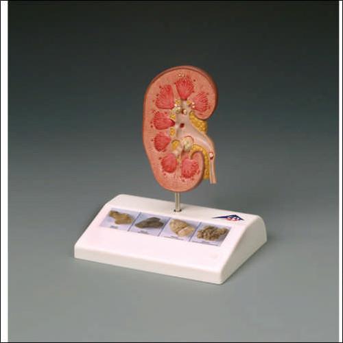 Kidney Stone Anatomical Model