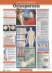 Osteoporosis Patient Anatomical Chart