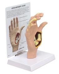 Hand Osteoarthritis Anatomical Model