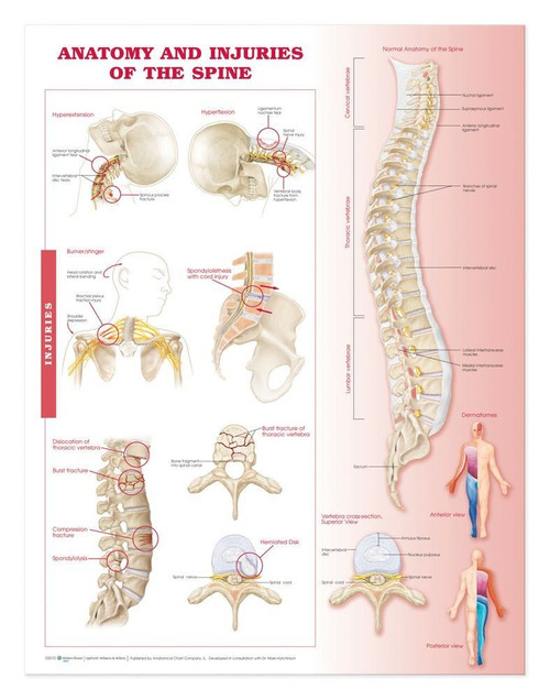 Spine injuries poster