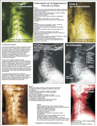 Cervical Spine Subluxation Degeneration in Spanish