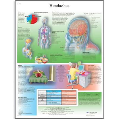 Headache Chart Clinical Charts And Supplies