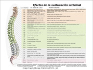 Effects Of Subluxation Poster in Spanish