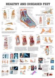 Diseased Feet