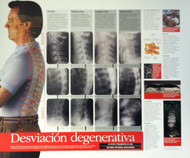Spinal Degeneration in Spanish