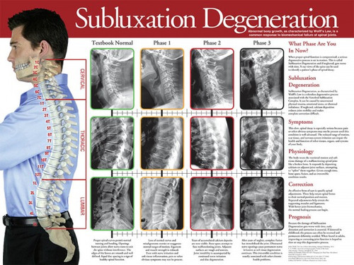 Subluxation Degeneration Wall Chart Clinical Charts And