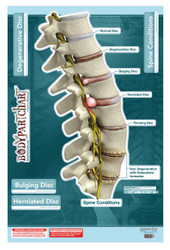 Spine Conditions Wall Poster