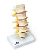 Stages of disc prolapse and vertebral degeneration Model