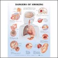 Dangers of Smoking Anatomical Chart