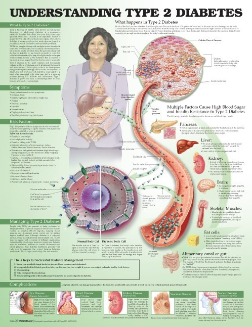 Understanding Diabetes 2 Diabetes
