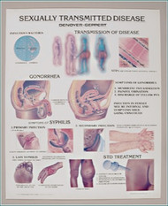 Sexually Transmitted Diseases Anatomical Poster