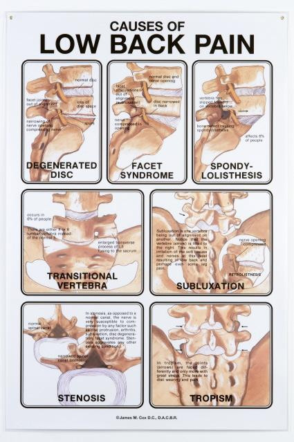 Low back pain and the causes clinical charts and supplies