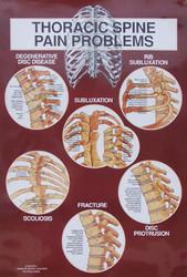 Thoracic Spine Diagnosis Anatomical Chart