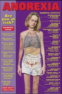 Anorexia Educational Chart