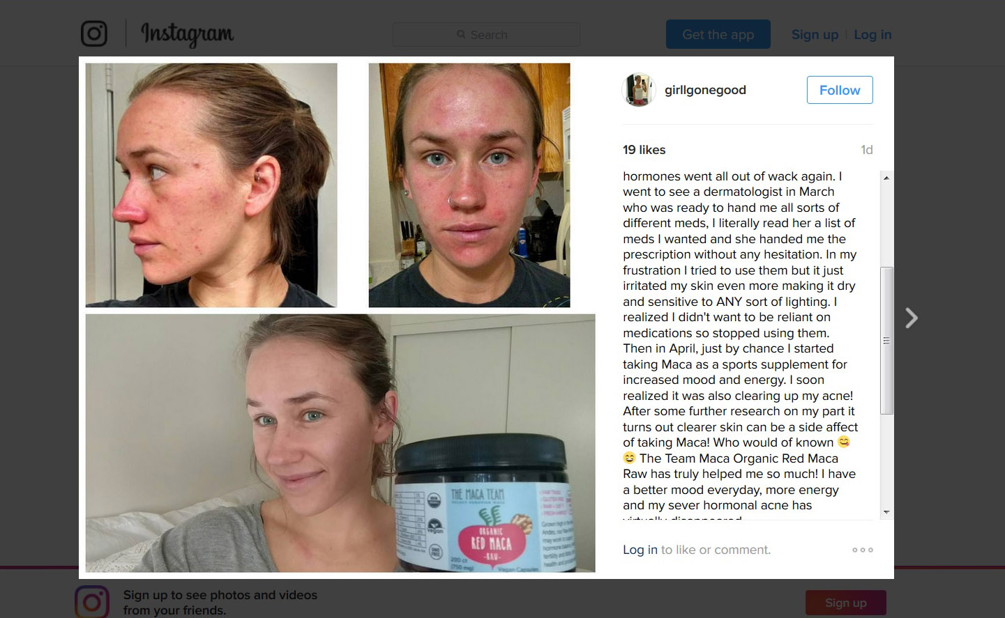 Maca For Acne Healing