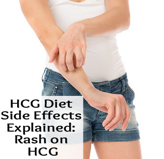 Diet Side Effects Explained Rash Hcg Diet Store