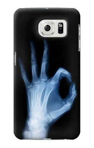 S3239 X-Ray Hand Sign OK Case For Samsung Galaxy S7 Edge
