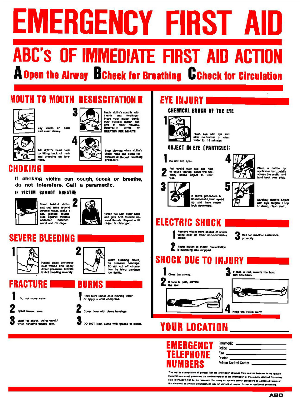 It's just a picture of Resource Printable Chart of First Aid Procedures